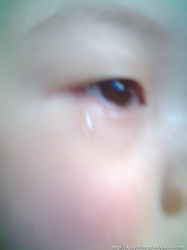 小帅哥龙体欠安~ - 金猪娃博客圈 - 情感牧场 - 搜