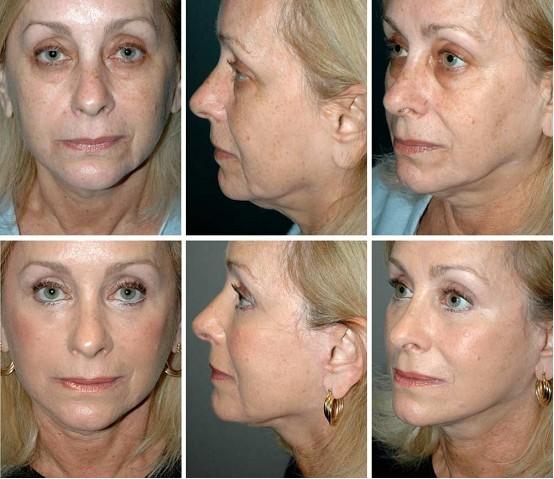 面部皮肤到骨膜结构图