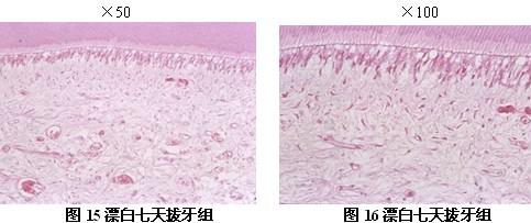 牙髓组织无明显改变,未见空泡及水肿,成牙本质细胞及成纤维细胞形态